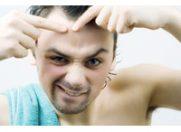 Punctele negre, preventie si tratament