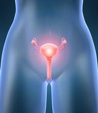 Fibromul uterin – ce este, de fapt, si care sunt noile metode de tratament