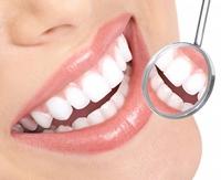 Alege tipul de albire dentara care ti se potriveste