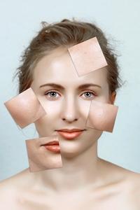 Tipuri de boli de piele
