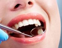 Protejeaza-ti smaltul dintilor!