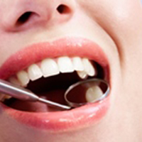 Laserul revolutioneaza tratamentele dentare