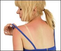 Remedii naturale contra arsurilor solare