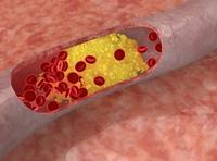 52% dintre romanii testati in cadrul Lunii Inimii prezinta valori ale colesterolului ce depasesc limita maxima