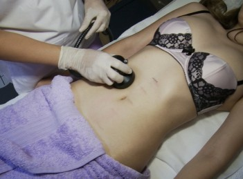 Tratamente inovatoare de remodelare corporala