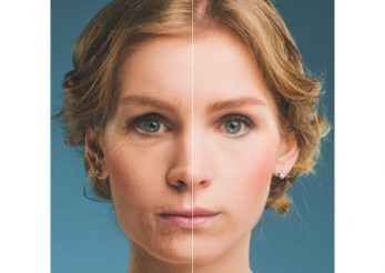 Botox… OUT! Inserarea firelor bioresorbabile… IN!