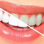 Albirea dentara, o necesitate?
