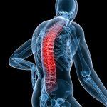 Depunerile de calciu: cauze si tratament