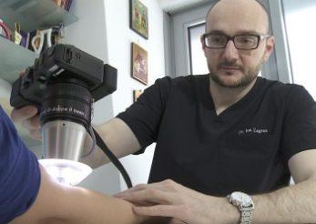 Evaluarea leziunilor cutanate cu ajutorul dermatoscopiei