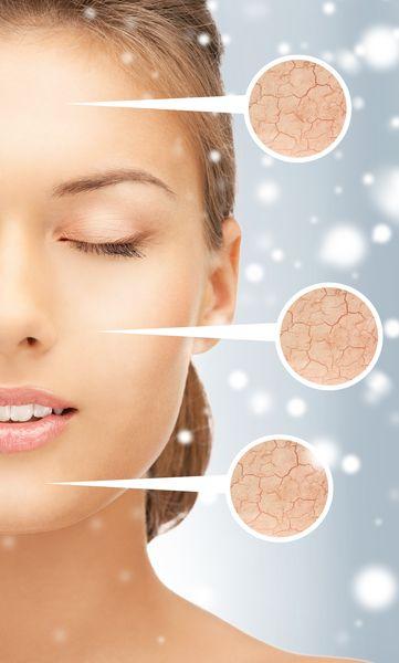 Cum prevenim agravarea bolilor dermatologice in sezonul rece ...