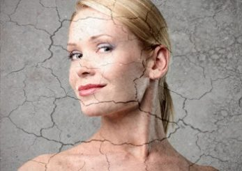 Cum prevenim agravarea bolilor dermatologice in sezonul rece?