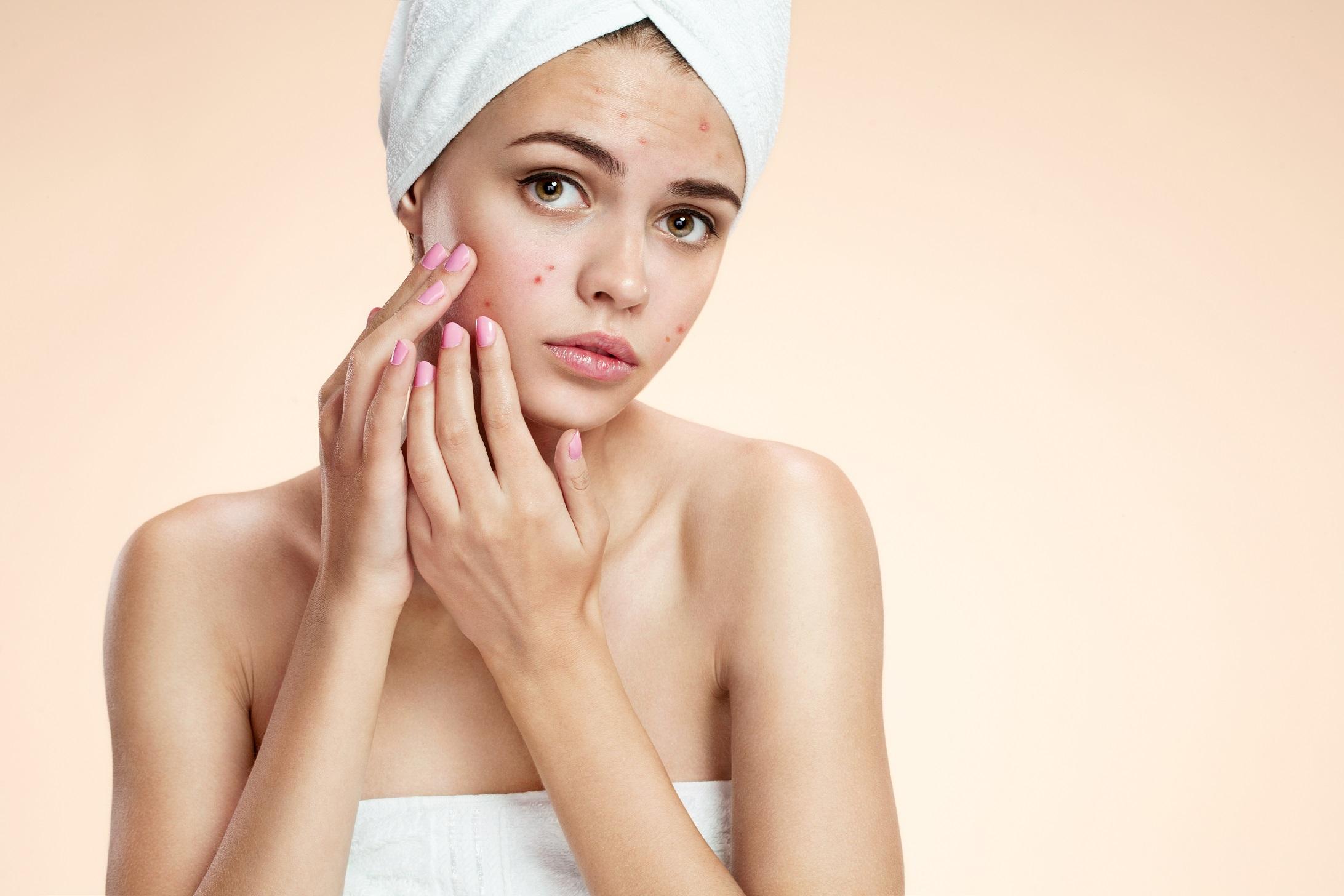 Folosirea corecta a fondului de ten pentru a preveni aparitia acneei