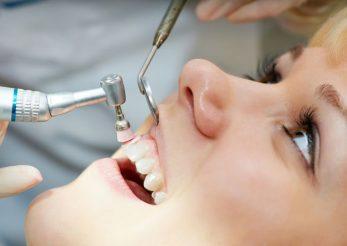 De ce este important detartrajul dentar si cat de des trebuie facut