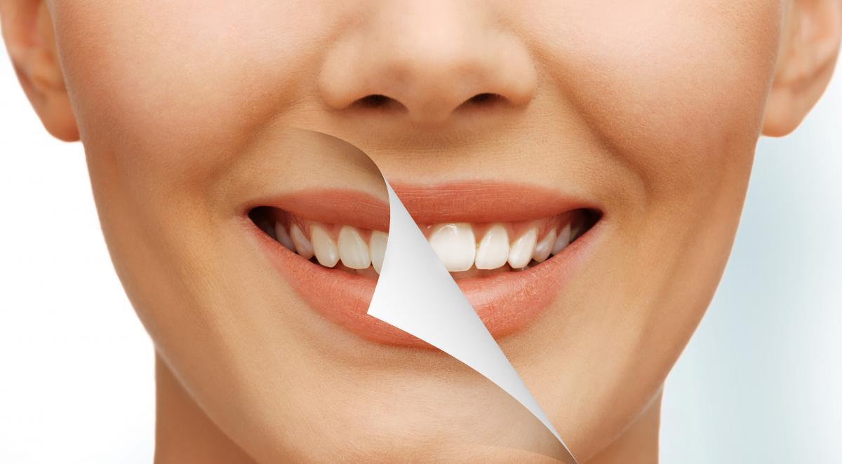 Top 3 intrebari si raspunsuri despre albirea dintilor