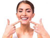 Aparatul dentar, intre moda si necesitate