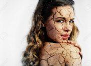 Vara și problemele pielii