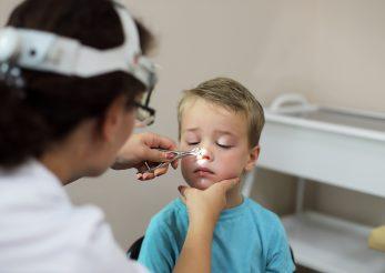 Polipii la copii: ce sunt și care sunt complicațiile