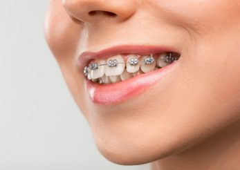 Aparatul dentar – trend sau nevoie?
