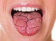Sindromul gurii uscate. De ce şi cum scapi de el?