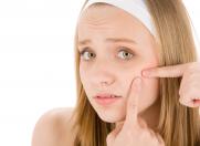 Despre acnee şi îngrijirea tenului cu imperfecţiuni