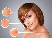 Cum să reduci dermatita atopică în mai puţin de o lună